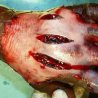hand Fasciotomy after bite from venomous snake