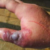 swollen thumb with pustule after snake bite