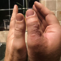 man shows difference between two thumbs after right thumb was bitten and swollen