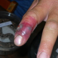 red and swollen pointer finger after bite from Copperhead snake
