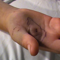 circles drawn on hand after bite from rattlesnake