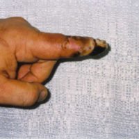 tissue damage on pointer finger after bite from pit viper