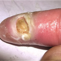 tissue damage to pointer finger after bite from Egyptian cobra