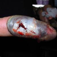 tissue damage to pointer finger after bite from rattlesnake
