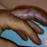 bite on finger from Western Massasauga Rattlesnake