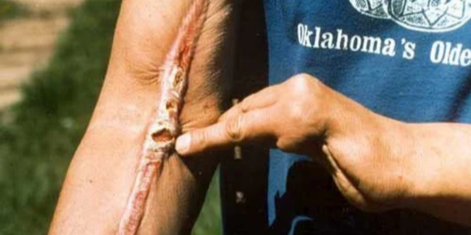 man shows snake bite on arm; missing a couple fingers on left hand